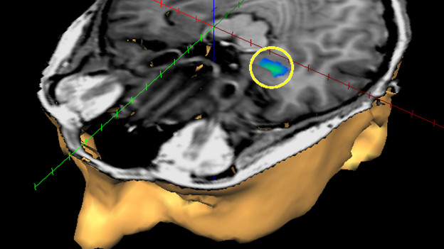 Achtsamkeit heisst, unser Zentrum für Emotionen im Hirn zu kontrollieren, den Mandelkern.